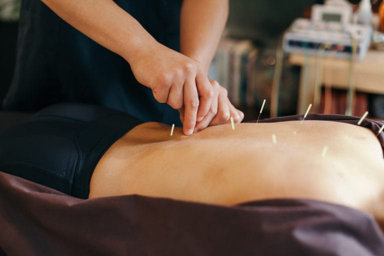 client at kent getting acupuncture in ottawa