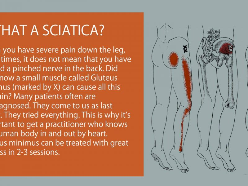 is that a sciatica